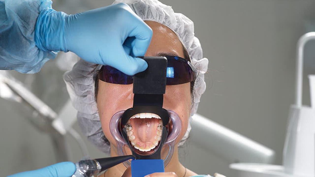 لوازم جانبی برای عکاسی از دندان